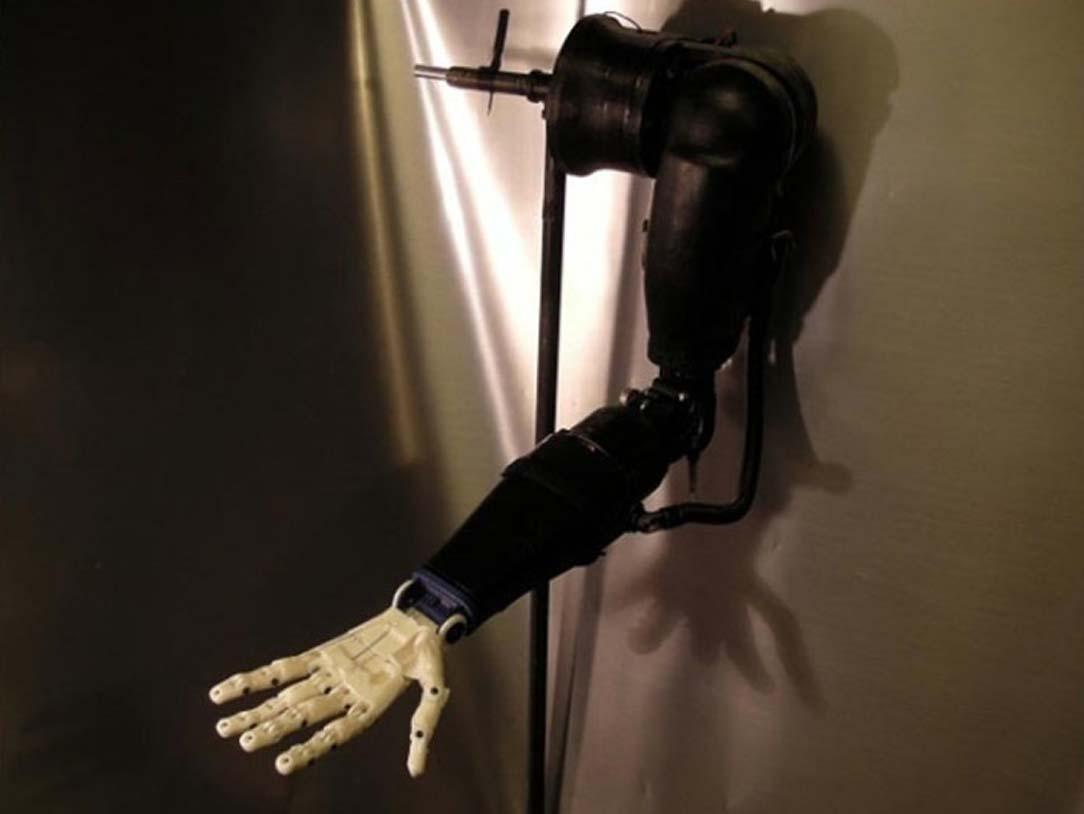 Prothèse de bras exposée