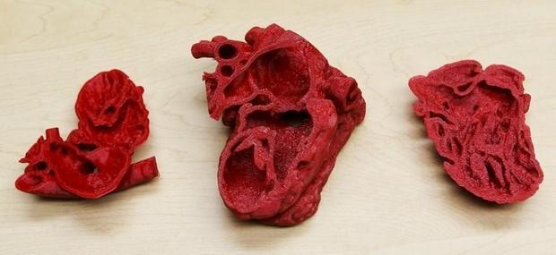 coeur imprimé en 3D